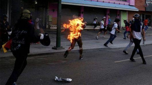 hombre-quemado-en-venezuela-580x326.jpg
